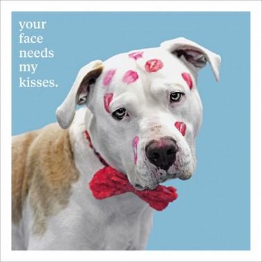 My Kisses